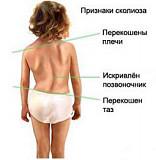Лечение и профилактика сколиоза Київ