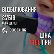 Відбілювання зубів ВСЬОГО 1100 грн. +Поверхнева чистка БЕЗКОШТОВНО. обох щелеп Київ